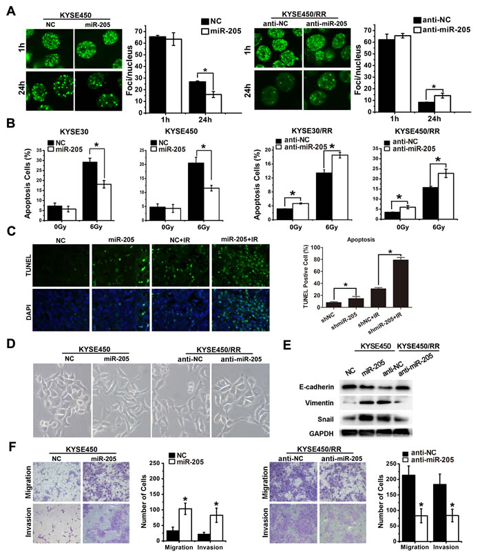 miR-205 increases radioresistance and confers an aggressive phenotype by improving DNA repair, inhibiting apoptosis and activating EMT.