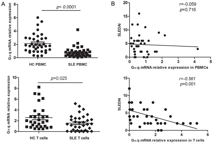 Decreased Gαq expression in PBMCs and T lymphocytes from SLE patients.