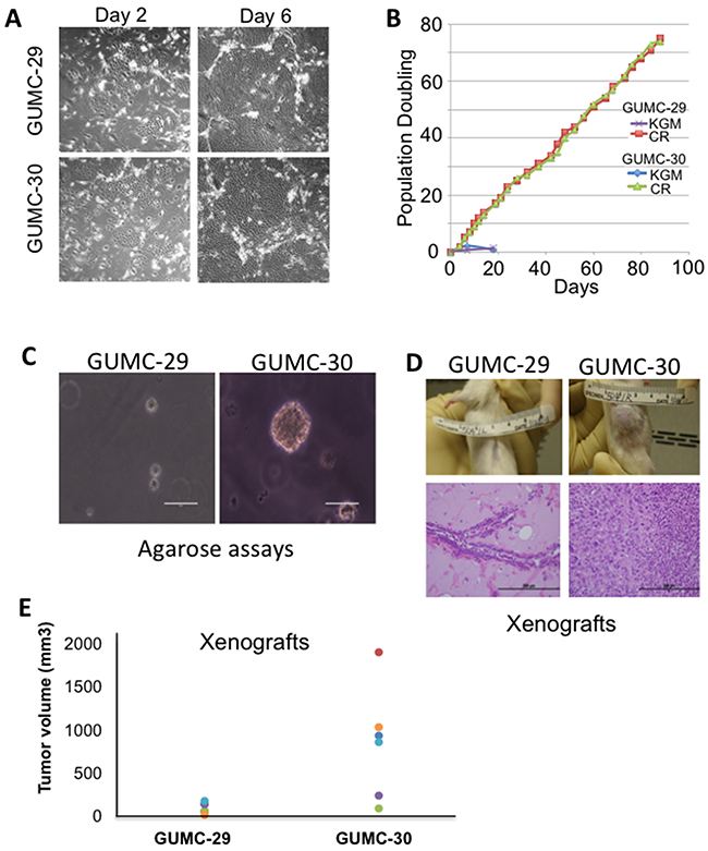 Establishment and biological characterizations of cell cultures from matched normal and tumor prostate specimens.