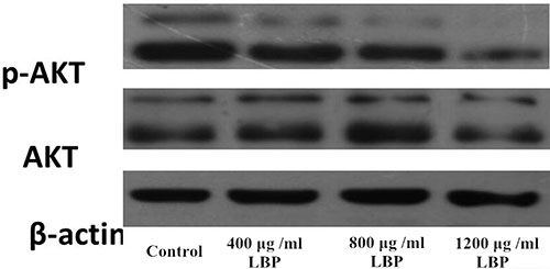 Western blot analysis of AKT and p-AKT expression in BIU87 cells of each group.