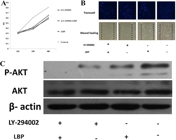 LBP inhibits the proliferation and migration of BIU87cells by inhibiting Pi3k/AKT pathway.