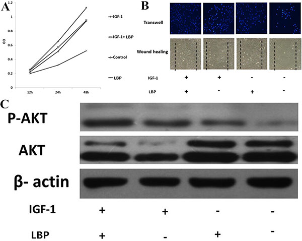 Effects of LBP and IGF-1 on the proliferation and migration of BIU87 cells and the expression of p-AKT.