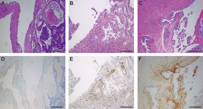 Representative photographs of ovarian clear cell carcinoma arising in endometriosis.