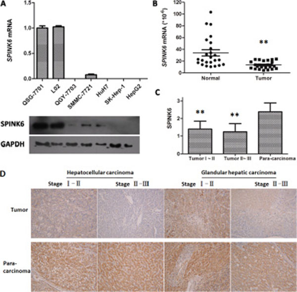 Expression of SPINK6 is reduced in HCC cell lines and tissues.