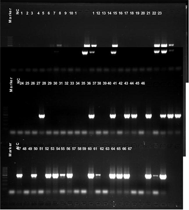 mecA gene detection.