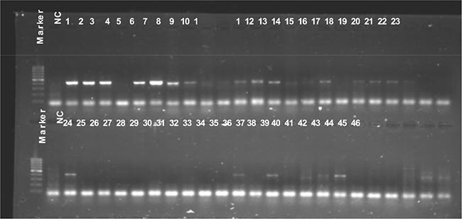 PVL gene detection.