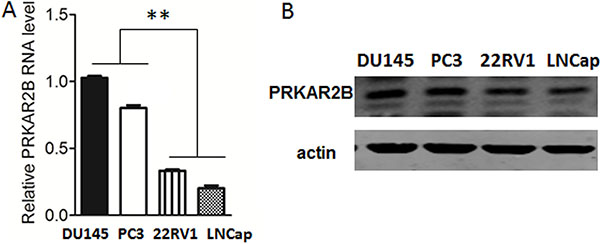 Expression of PRKAR2B in prostate cancer cell lines.