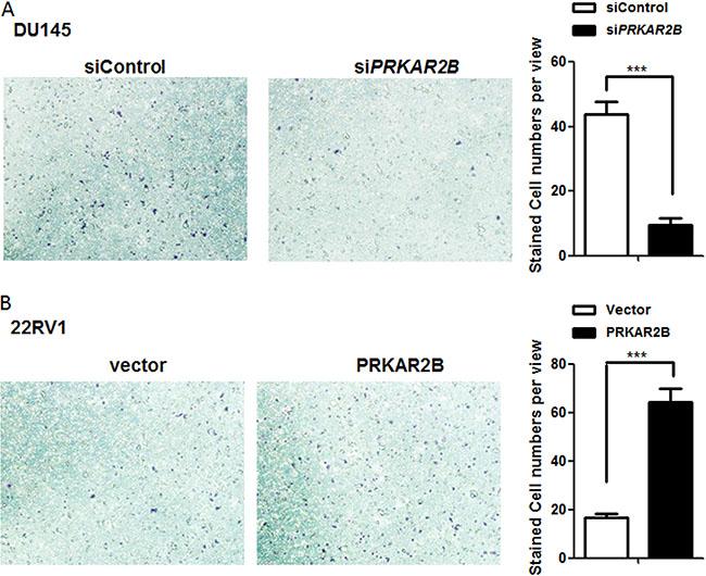 PRKAR2B promotes CRPC cell invasion.