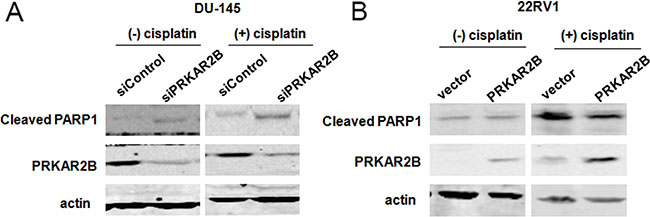 PRKAR2B plays the role of anti-apoptosis in CRPC cells.