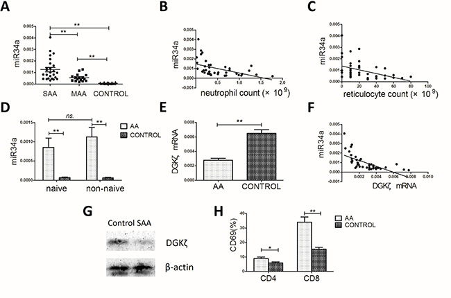 miR34a, DGKζ and CD69 expression in the AA patients and controls.
