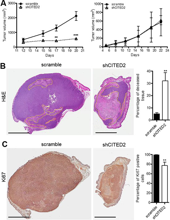 CITED2 silencing attenuates MDA-MB-231, but not MDA-MB-468 tumor growth.
