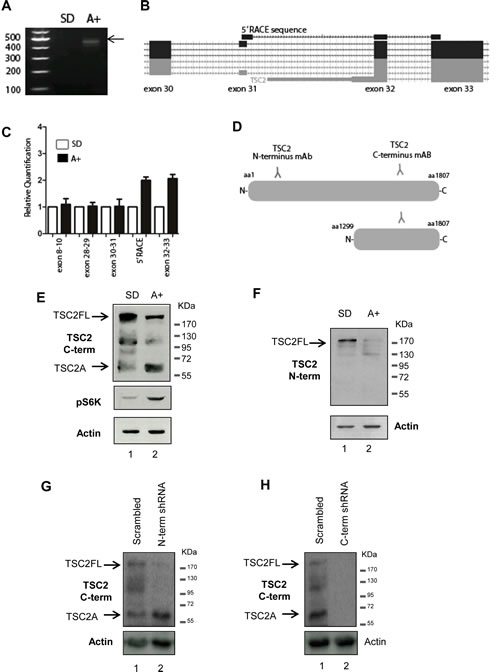 Identification of a novel androgen regulated protein isoform encoded by the tumour suppressor gene