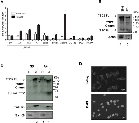 Expression of TSC2 isoform A is detected in clinical PCa samples and is a cytoplasmic protein.