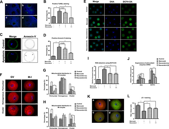Effect of resveratrol on mancozeb induced ROS related apoptosis in ovary and oocyte.