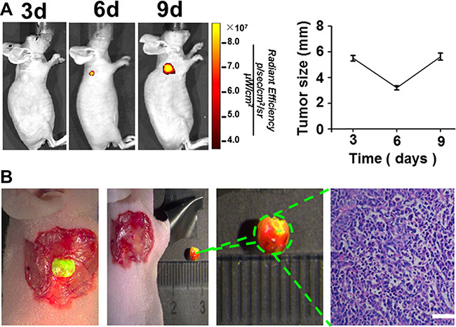 The imaging time of subcutaneous tumors of gastric cancer cell line SGC-7901 and the fluorescence imaging guided surgery.