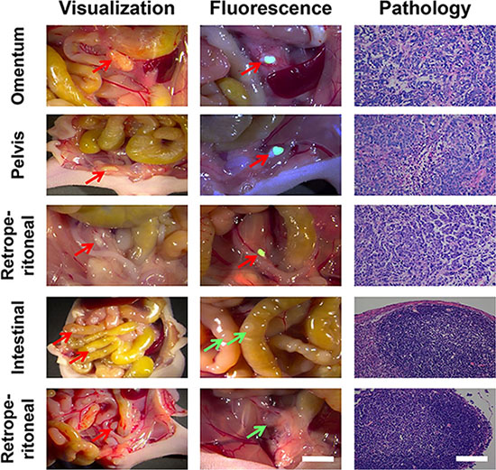 The application of RGD-ICG-based optical system in the cytoreduction surgery for peritoneal carcinomatosis from gastric cancer.