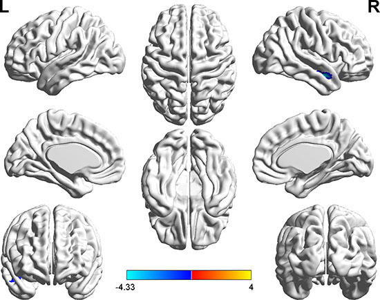 Brain regions showing decreased functional connectivity (blue) with the seed-1 point (−15, −66, −48) in the hyperthyroid group compared with the control group (P < 0.001, AlphaSim corrected).