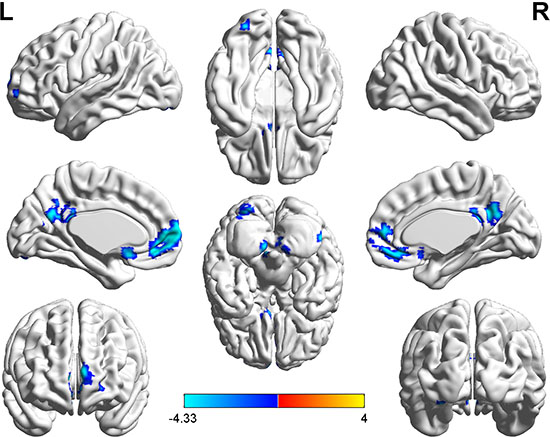Brain regions showing decreased functional connectivity (blue) with the seed-2 point (−6, 39, −6) in the hyperthyroid group compared with the control group (P < 0.001, AlphaSim corrected).
