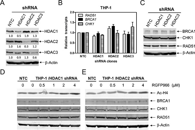 HDACs 1 and 2 cooperate in regulating BRCA1, CHK1, and RAD51 expression in AML cells.