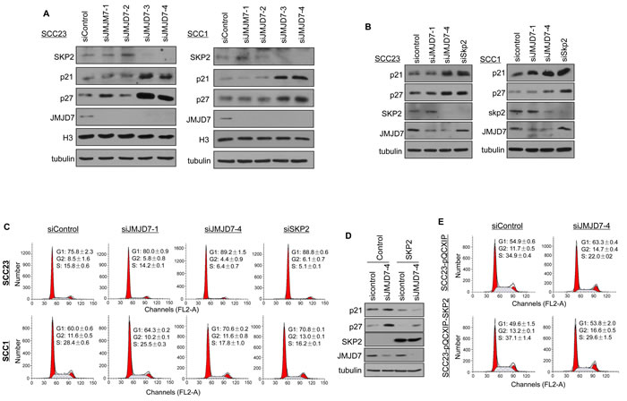JMJD7-PLA2G4B controls SKP2 expression to promote cell cycle progression in HNSCC cells.