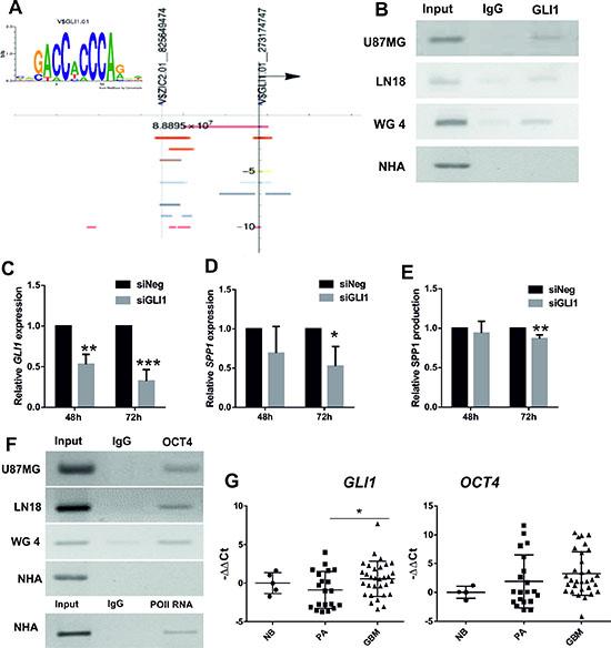 GLI1 and OCT4 participate in transcriptional regulation of SPP1 expression in glioma cells.