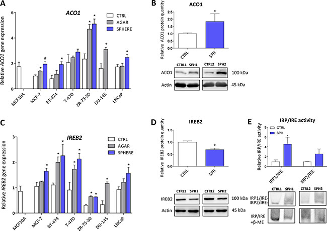 Iron responsive protein/Iron responsive element (IRP/IRE) components are deregulated and show activation of the IRP/IRE binding in tumor-initiating cells (TICs).