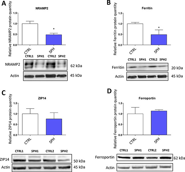 Protein levels of regulators related to iron transport (NRAMP2, Natural resistance associated macrophage protein 2) and iron storage (ferritin) are decreased while expression of proteins participating in non transferrin bound iron (NTBI) uptake (ZIP14, Zinc importer protein 14) and iron export (ferroportin) does not differ in tumor-initiating cells (TICs).