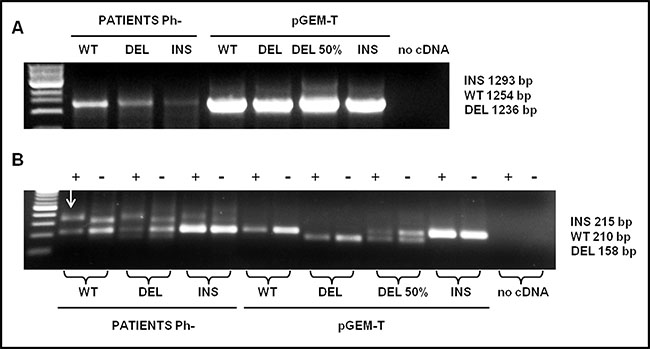 Detection analysis by PNA directed PCR clamping of CALR type-1 (DEL) and type-2 (INS) mutations.