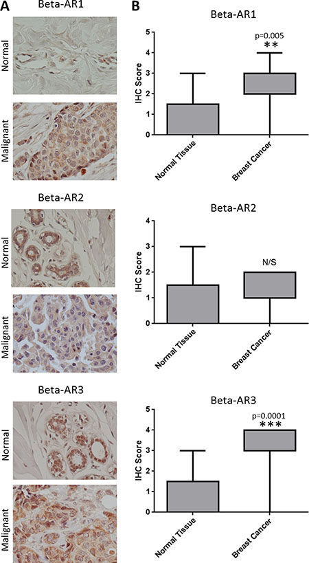 Overexpression of β-ARs in breast cancer.