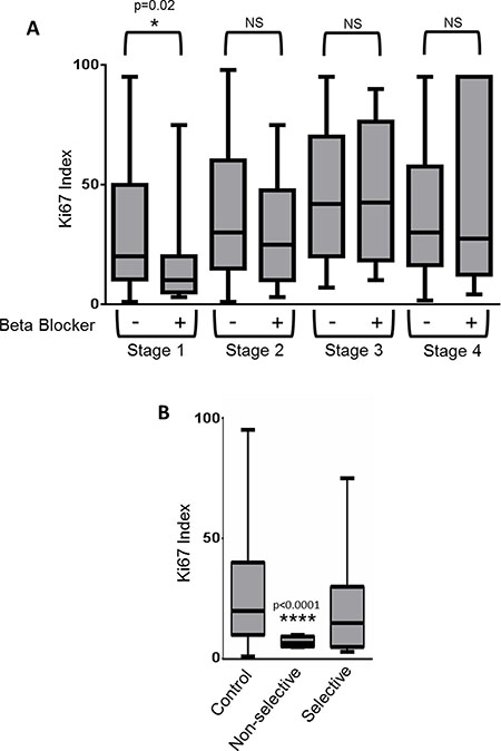 Use of β-blockers is correlated with a reduction in the proliferation rate of Stage I breast cancers.