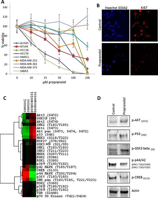 β-blockers inhibit the proliferation of breast cancer cell lines.