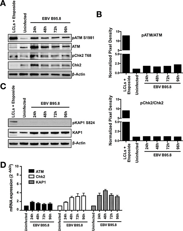 EBV inoculation does not elicit ATM/Chk2-mediated DDR activation in tonsillar B-cells (TBCs).