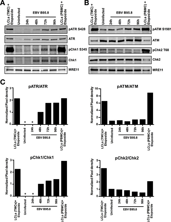 EBV inoculation elicits ATR/Chk1-mediated pathway activation but not ATM/Chk2 in peripheral B-cells (PBCs).