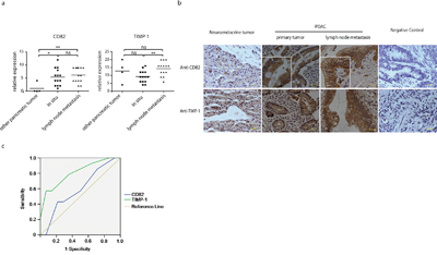 TIMP-1 and CD82 expression in PDAC patients.