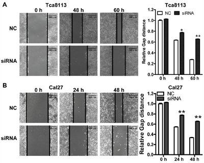 Knockdown LINC00673 suppressed TSCC tumor cell migration.