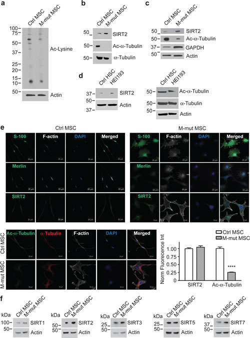 Merlin-Mutant MSC (M-mut MSC) Have Lower Levels of Lysine Acetylation and Higher Levels of SIRT2 Compared to Control MSC.