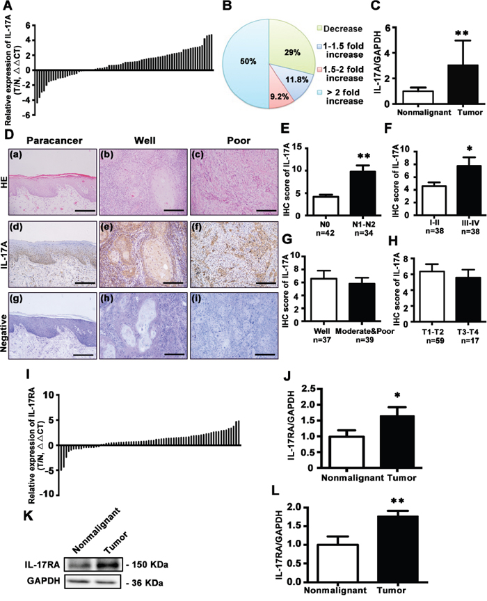 Expression and distribution of IL-17A and its receptor IL-17RA in tongue tissues.