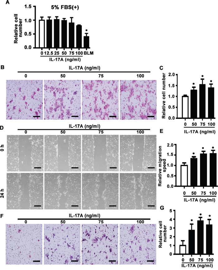 IL-17A promotes cell migration and invasion of SCC15 cells.