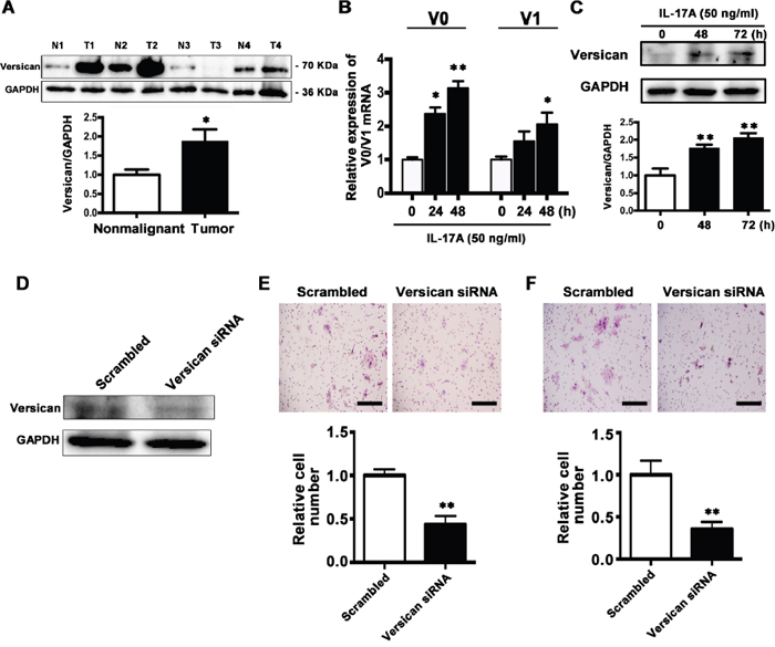 IL-17A promotes versican expression and downregulation of versican inhibits migration and invasion abilities of SCC15 cells.