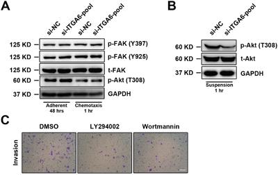 Integrin α6 regulates cellular motility of ESCC through Akt pathway.
