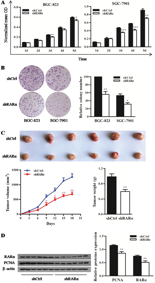 Effect of RARα knockdown on the proliferation of GC cells in vitro and in vivo.