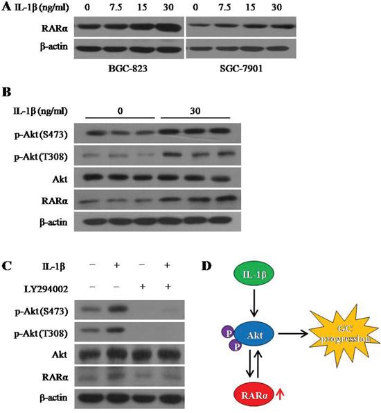 IL-1β induced RARα overexpression via activation Akt signaling.