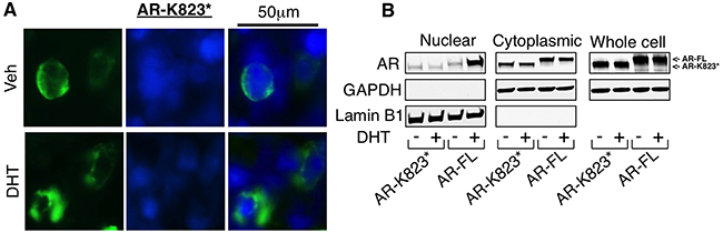 Loss of intact NES contributes for the nuclear localization of AR-Q784*.