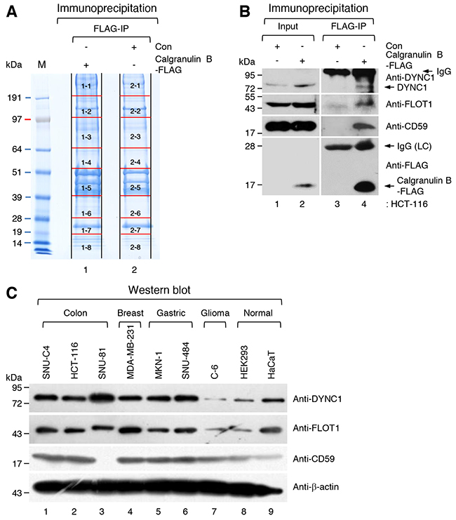Identification of candidate calgranulin B-interacting proteins.