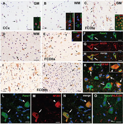 Panx1 immunoreactivity (IR) in cortical lesions of FCD.