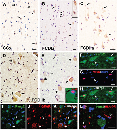 Panx2 immunoreactivity (IR) in cortical lesions of FCD.