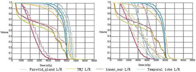 The DVHs for the parotid gland, temporomandibular joint (TMJ), inner ear, and temporal lobe.