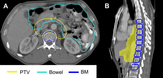Examples of contours for the bowel and the bone marrow (BM).