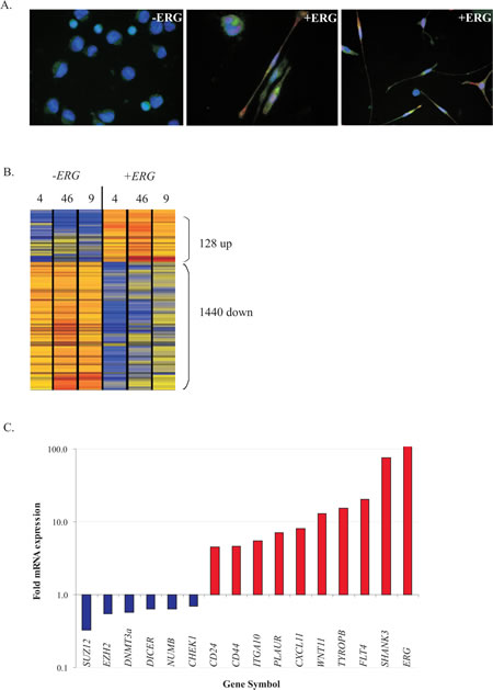 ERG overexpression induces a mesenchymal-like signature accompanied by repression of DNA homologous recombination repair gene expression.