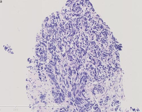 Pathological images of rebiopsy of hepatic mass.